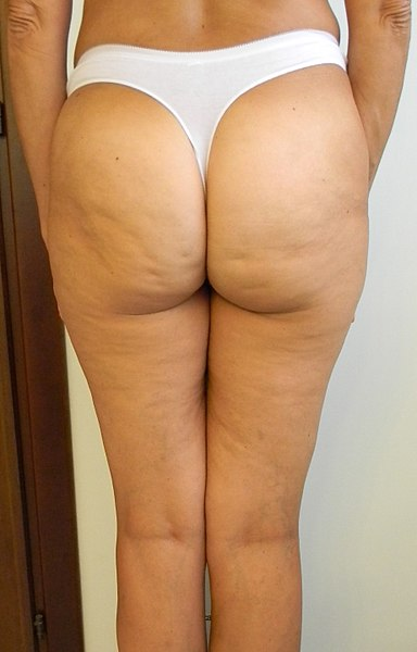 Cellulite on Bum