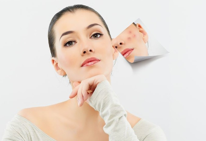 acne-treatment-works